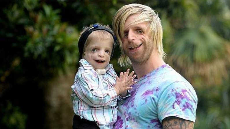 Man With Rare Condition Flies All The Way To Australia To Meet A 2-Year-Old With The Same Disorder
